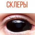 Склеральные линзы