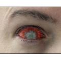 Линзы склеры Зомби