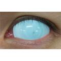 Линзы склеры Белые слепые